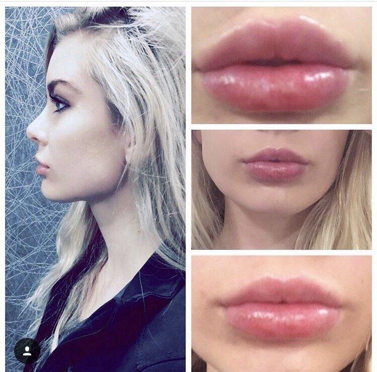 Lip augmentation with Restylane Refyne - Yelp