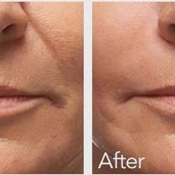 Laser MD MedSpa - 44 Reviews - Skin Care - 1 Elm St, Danvers