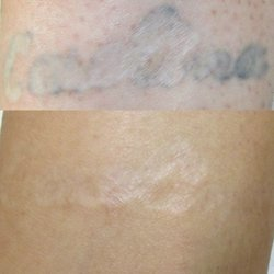 Vanish Laser Tattoo Removal And Skin Aesthetics - 37 Photos - Tattoo ...