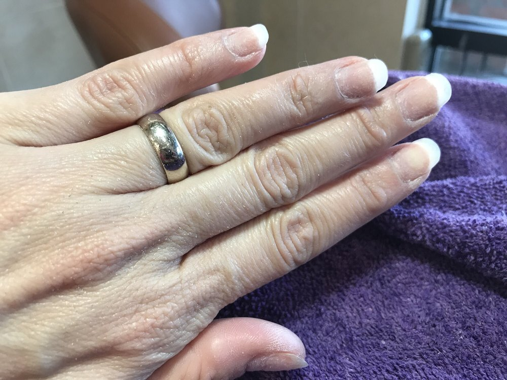 After dip powder manicure removal. My nails have never been this ...