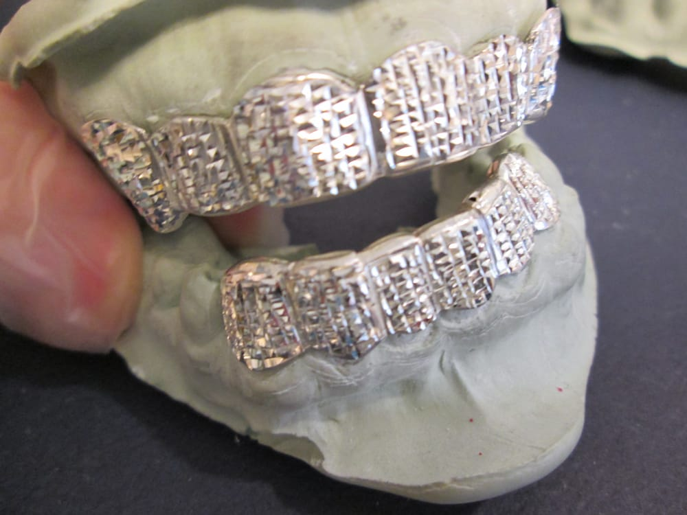 Photo Of Sango Gold Grillz Sango Ca United States Diamond
