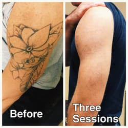 absolute laser tattoo removal 35 photos 45 reviews
