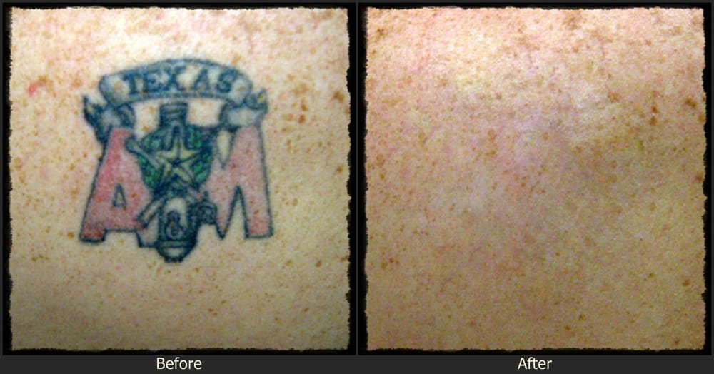 remove tattoo, tattoo removal cream, tattoo removal before and after ...