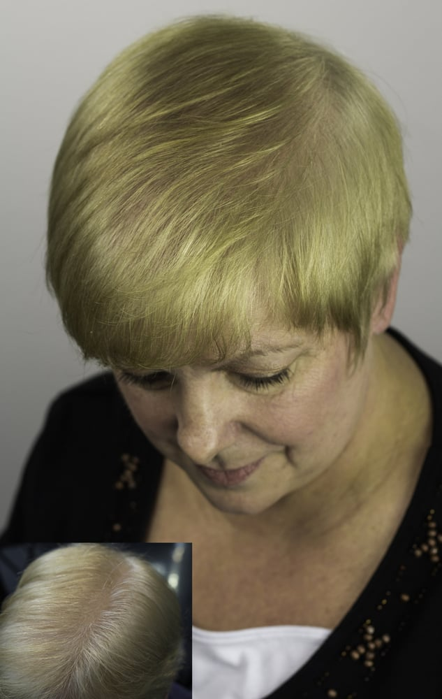 Have Thinning Hair Our Micro Point Hair Extensions Fill In Thin