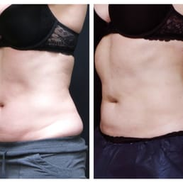 Which causes more weight loss wellbutrin xl or sr picture 7