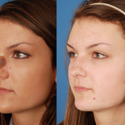 facial cosmetic surgery dallas