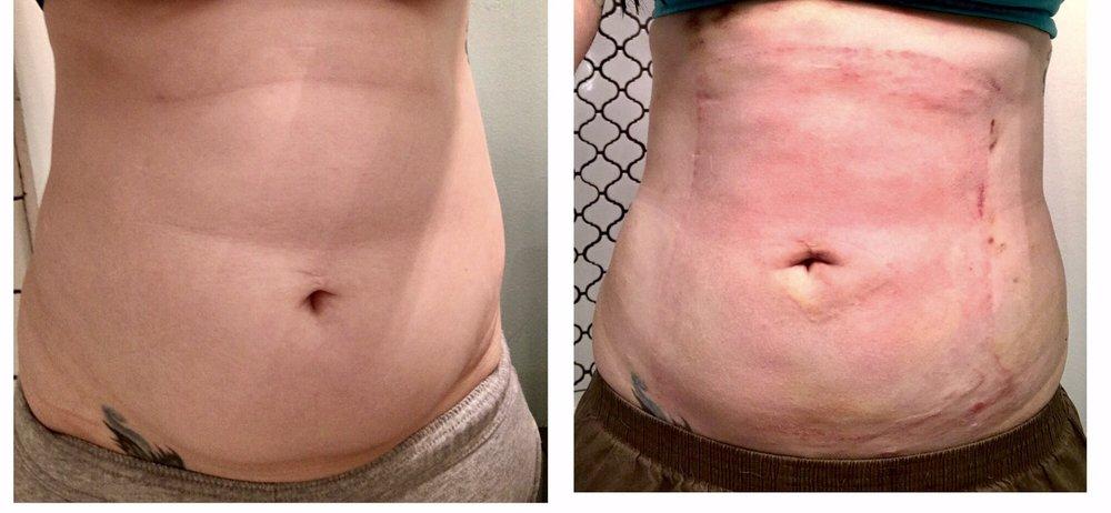 In breast california liposuction
