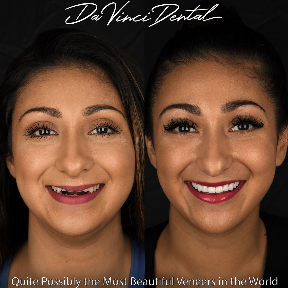 Da Vinci Dental: 909 112th Ave NE, Bellevue, WA
