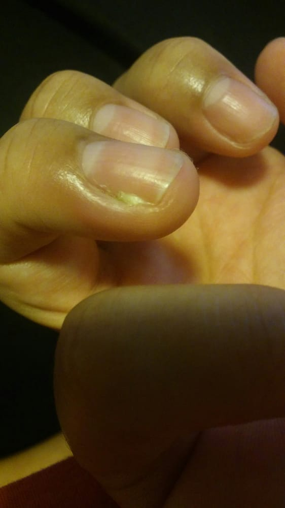 Infection under nail - Yelp