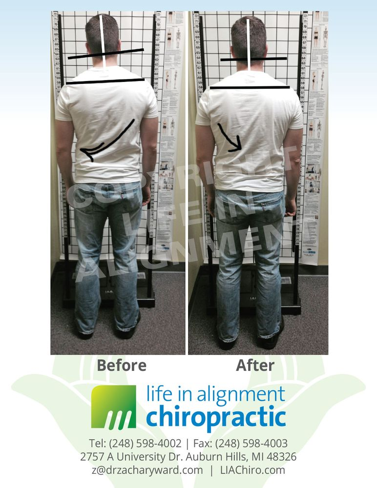 Life In Alignment Chiropractic: 2757-A University Dr, Auburn Hills, MI