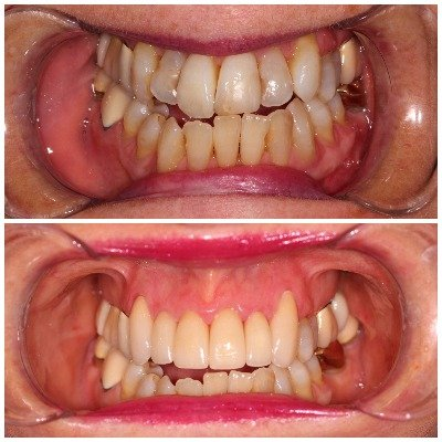Mint Condition Dental- Cheney Dentist | 60 Simpson-Parkway, Cheney, WA 99004, Cheney, WA, 99004 | +1 (509) 235-2900