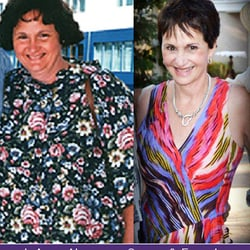 Beliteweight Weight Loss Services Inc 11 Photos Weight Loss