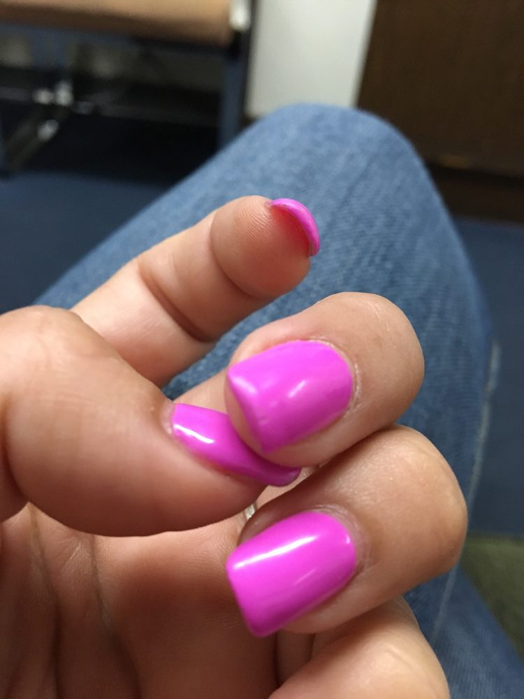 My middle nail is cracked and dull with no shine after six days of ...
