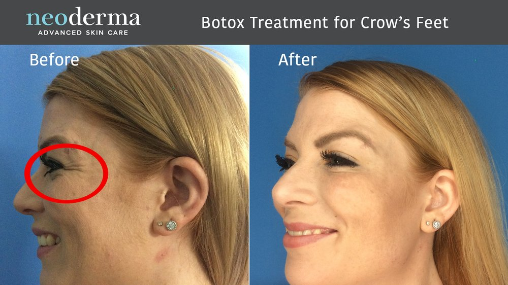 Botox Cosmetic is great for helping reduce visible crow's