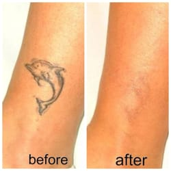 A change of art laser tattoo removal closed tattoo for Tattoo removal maryland