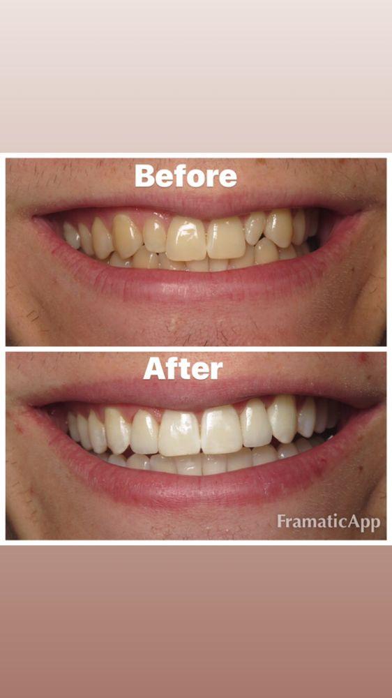 Patient Has Invisalign Zoom Teeth Whitening And 2 Veneers To Fix
