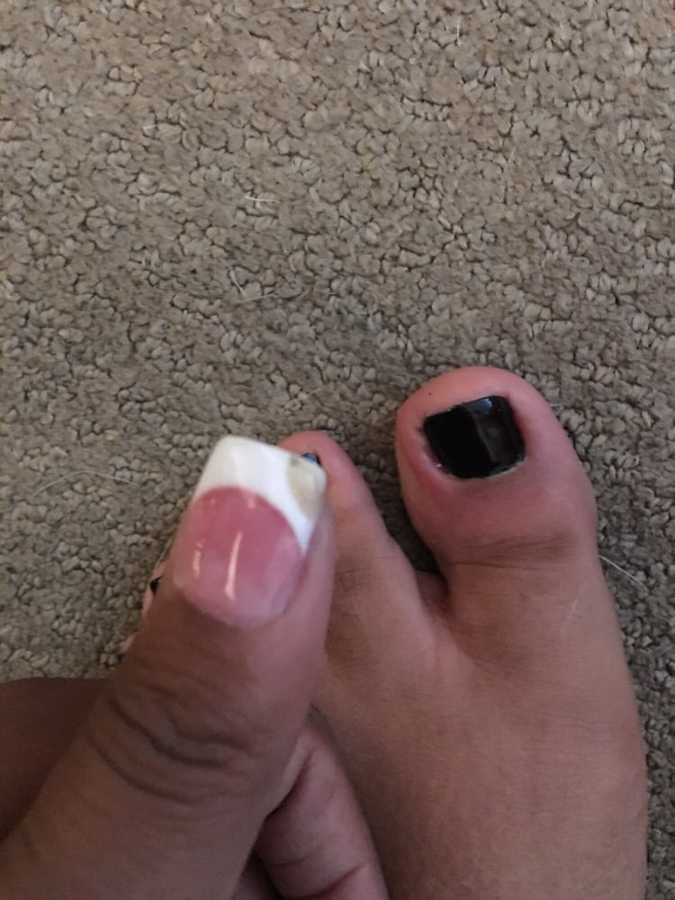 I have green puss coming out of my big toe a day after I got a ...