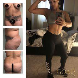 Goals Aesthetics & Plastic Surgery - CLOSED - 32 Photos & 34 Reviews