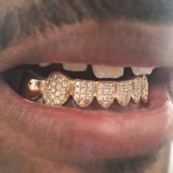 The Plug Jewelry Amp Gold Teeth Grillz 129 Photos