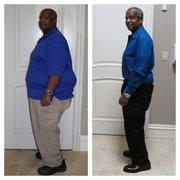 weight loss redmond wa