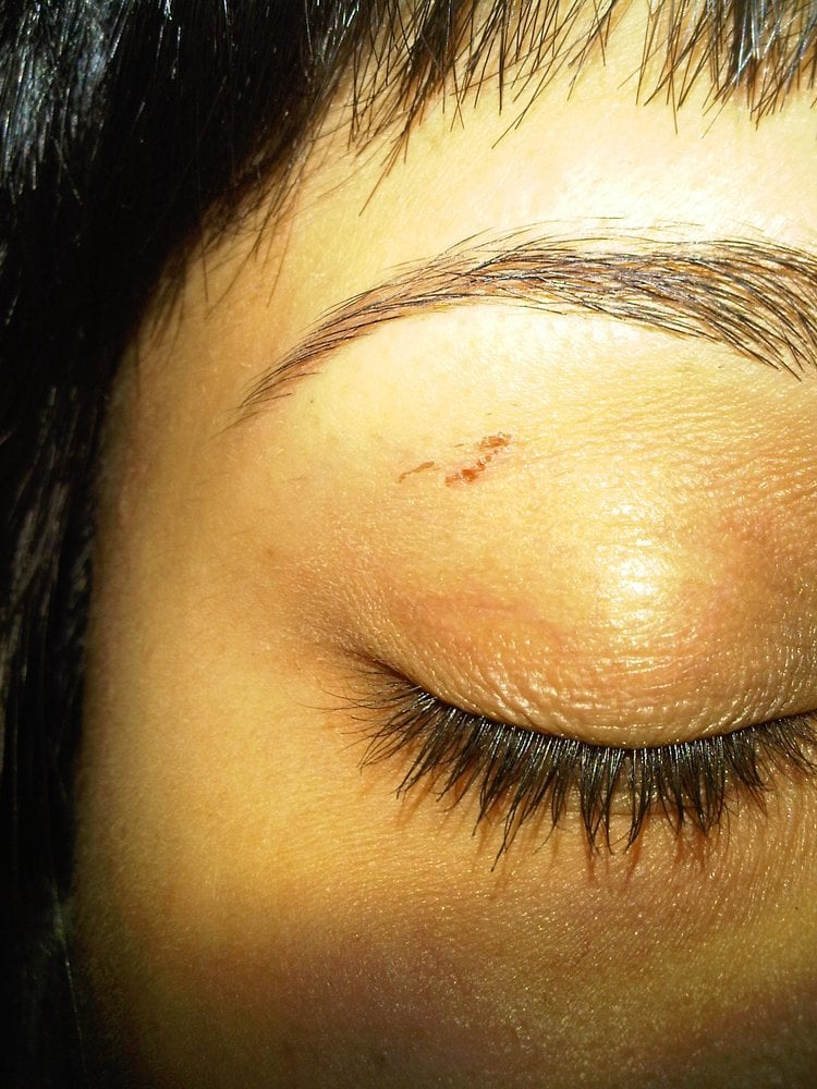 Eyebrow Waxing They Left Large Red Cuts Under My Eyebrown Which