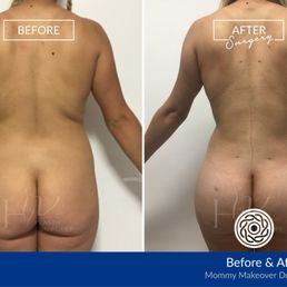 Yelp Reviews for HV Plastic Surgery - 17 Photos - (New) Cosmetic