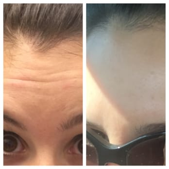 raton Boca surgery plastic facial