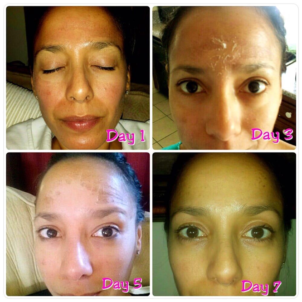 Jessner Peel 7 Days To More Perfect Skin Yelp