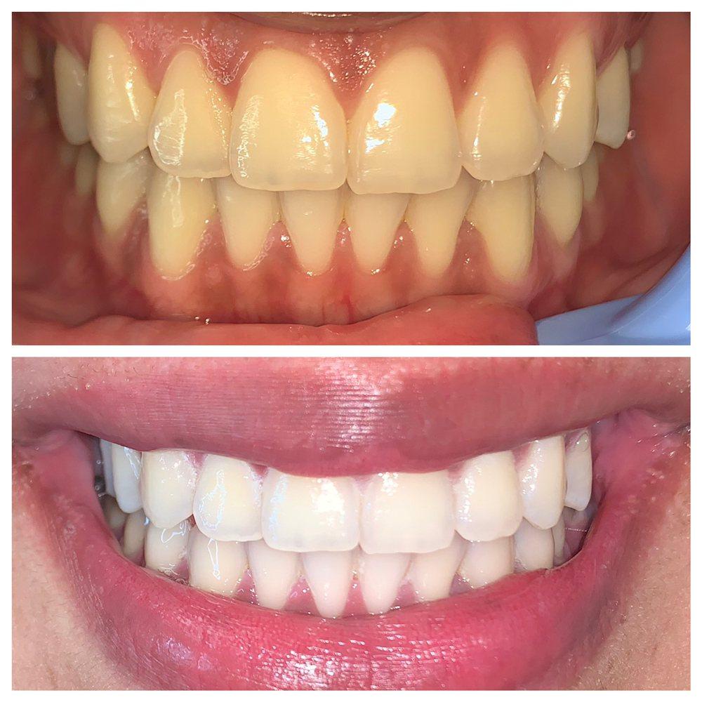 Moe's Teeth Whitening: 1530 Jamacha Rd, El Cajon, CA