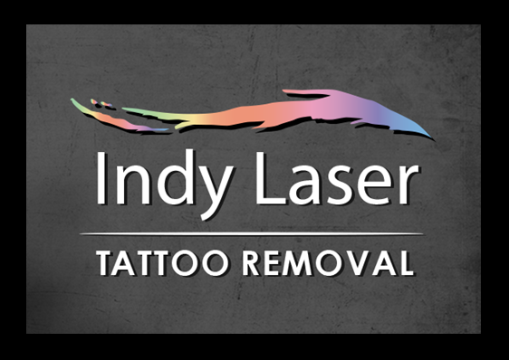 Photos for Indy Laser Tattoo Removal - Yelp