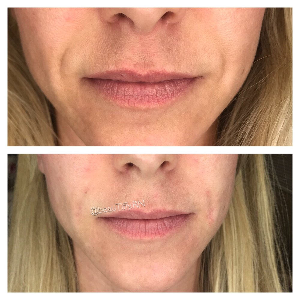 Before on top Right after juvederm injection in nasal labial