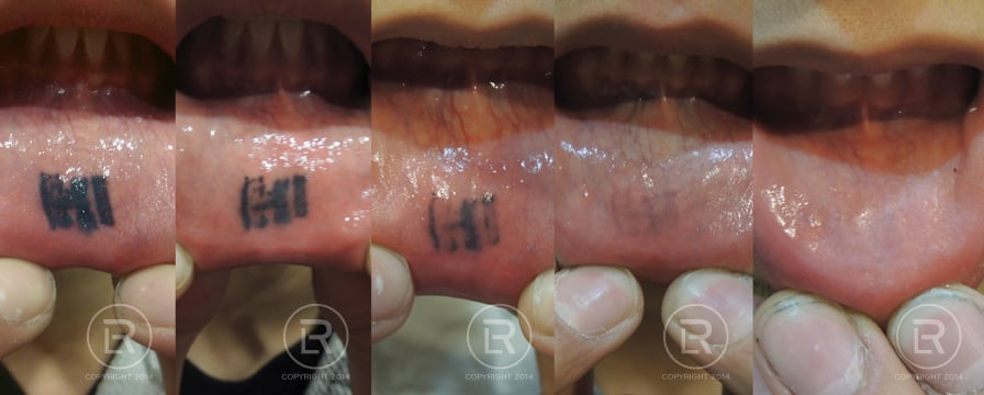 Before During And After Photos Of Inner Lip Tattoo