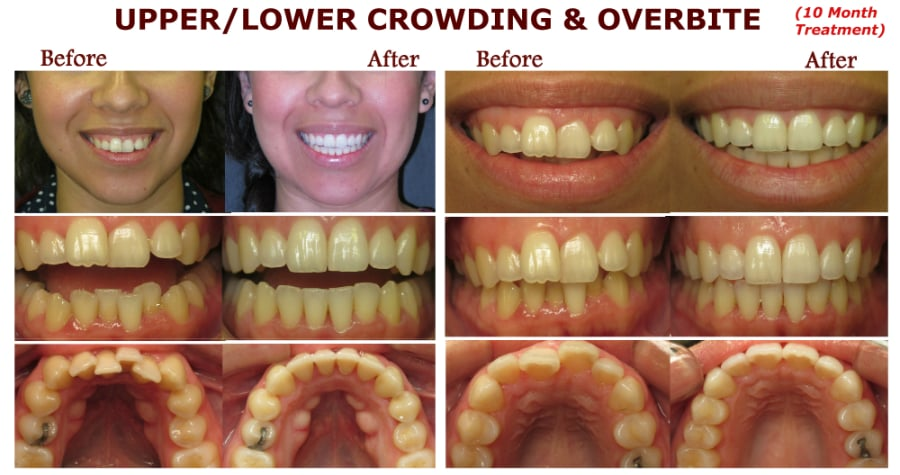 SanDiego-Invisalign - 12 Photos - General Dentistry - 8899 ...