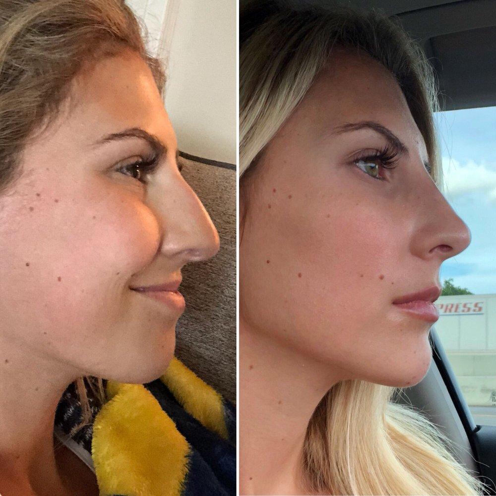 Liquid nose job, chin filler, and Botox - Yelp