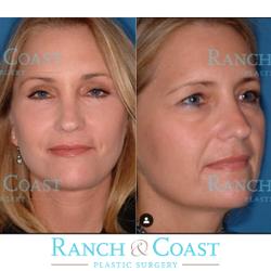 Paul E Chasan, MD, FACS - Ranch & Coast Plastic Surgery