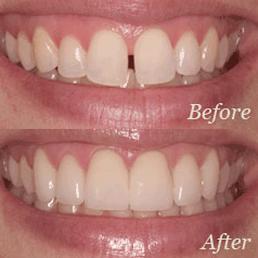 Washington State Prosthodontics and Dental Implant Center