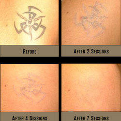 MicroPen TR - Laser Tattoo Removal Alternative Now Available In ...