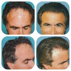 Meshkin Medical - Hair Transplant Surgery - 138 Photos