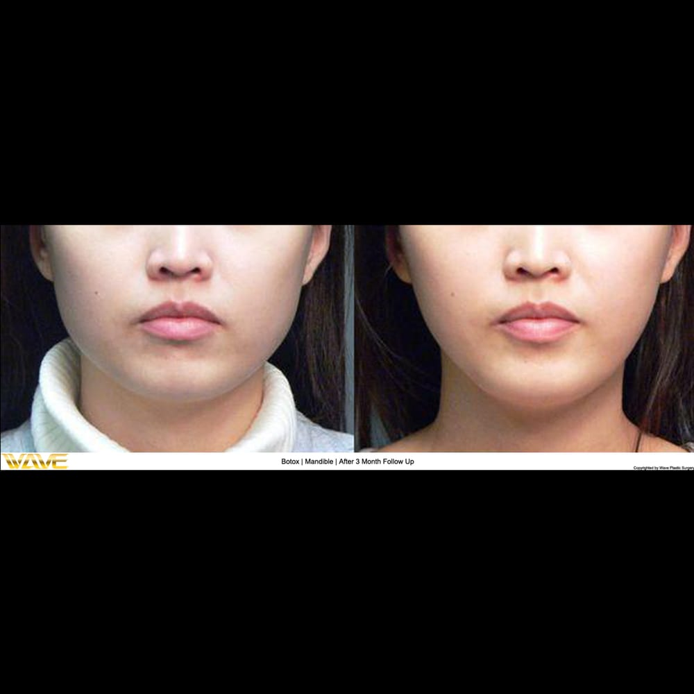 Buccal Fat Removal | After 2 Month Follow Up - Yelp