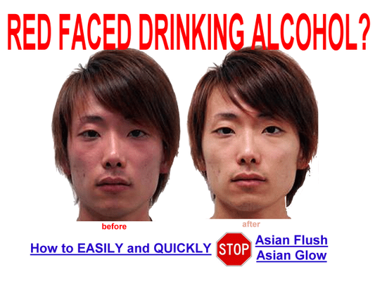 Asian alcohol red face