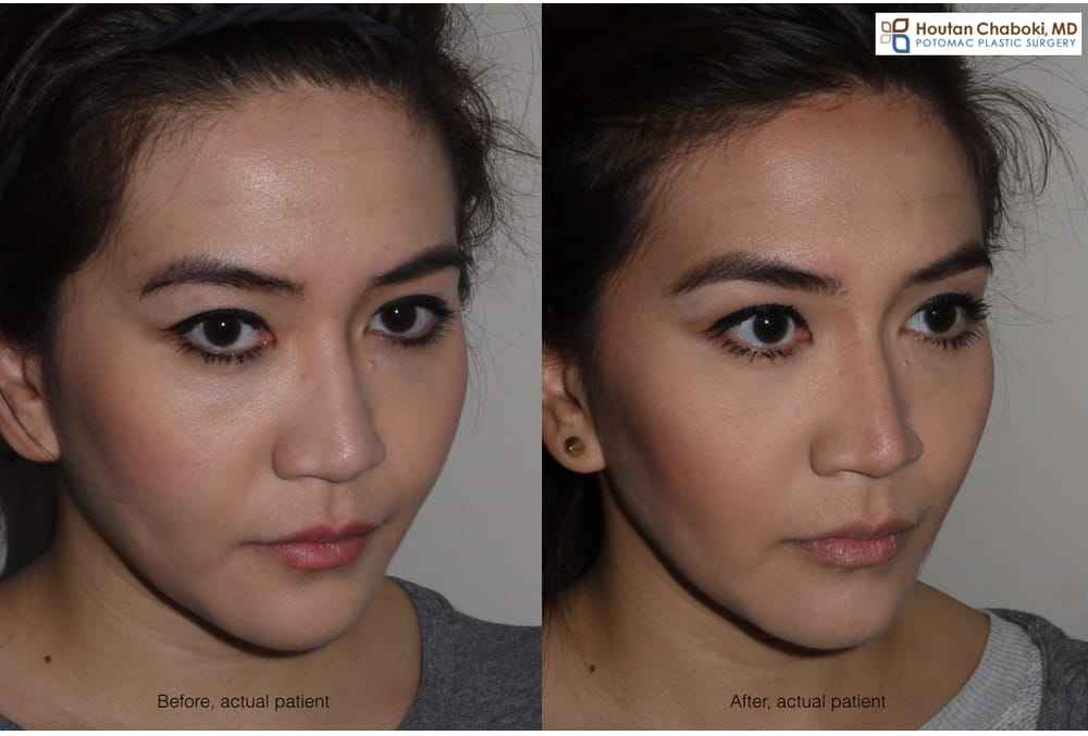 Jawline Botox Reduction & Slimming Treatment in Singapore