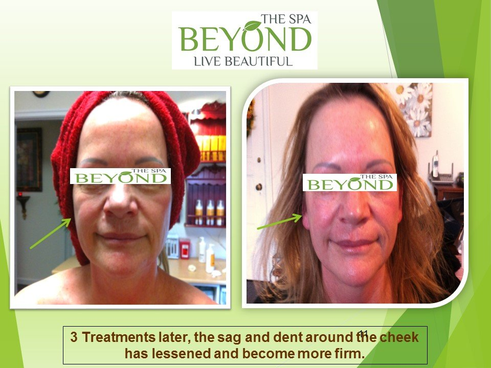 BEYOND THE SPA - WE SPECIALIZE IN ULTHERAPY