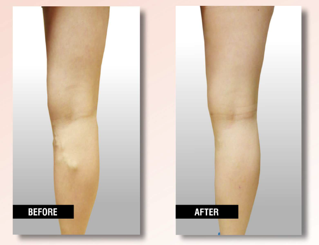 Endovenous Laser Therapy(EVLT) before and after - Yelp