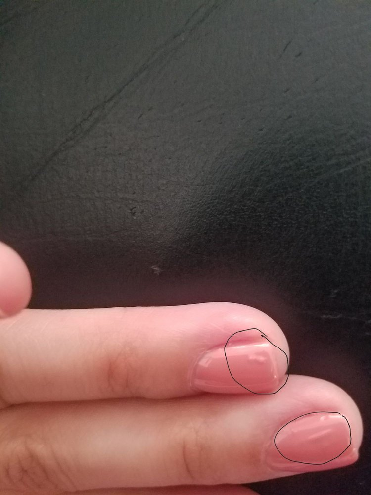 Bumps on nails as if something was left on my nail and then painted ...
