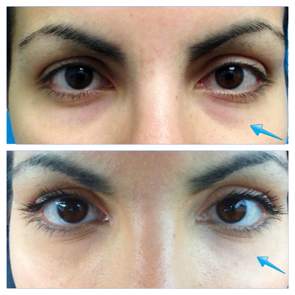 Before And After One Syringe Of Belotero Under The Eyes