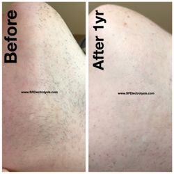 SF Electrolysis - 23 Photos & 22 Reviews - Hair Removal - 500 Sutter