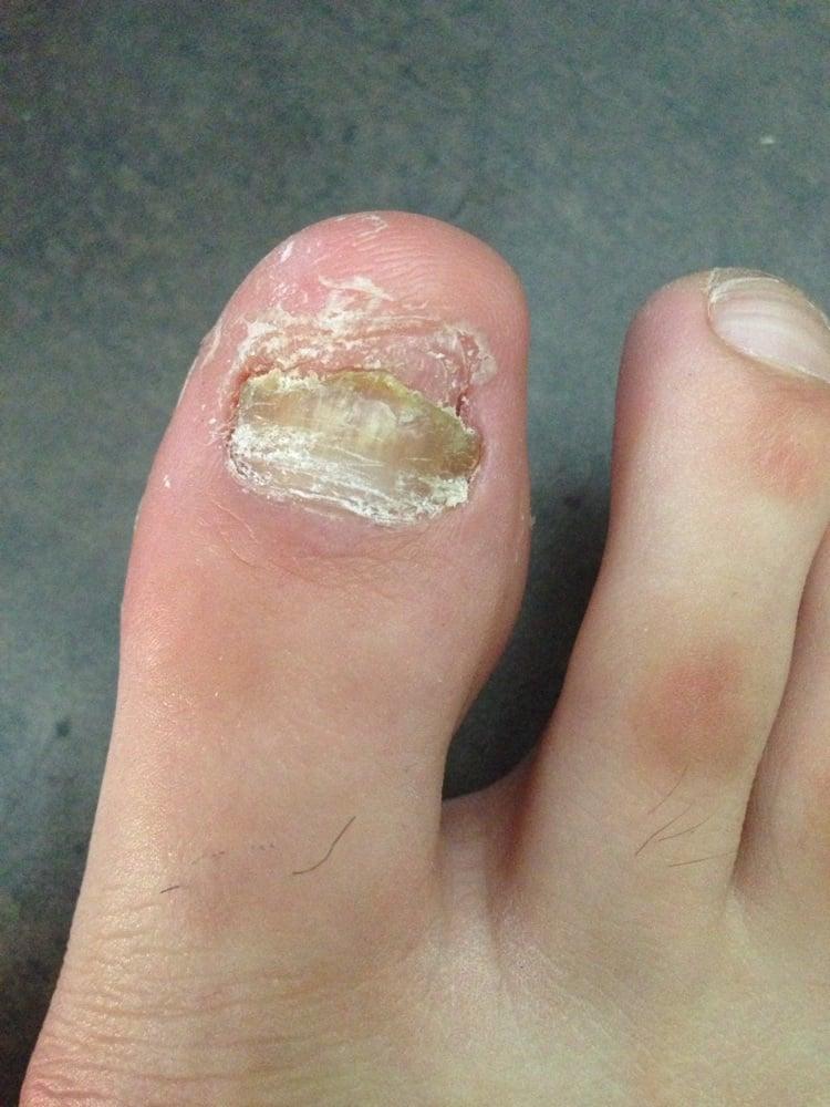 Neat Feet Podiatry Laser Center - CLOSED - 17 Reviews - Podiatrists ...