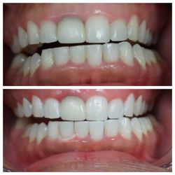 The Best 10 Teeth Whitening In Houston Tx Last Updated April 2019
