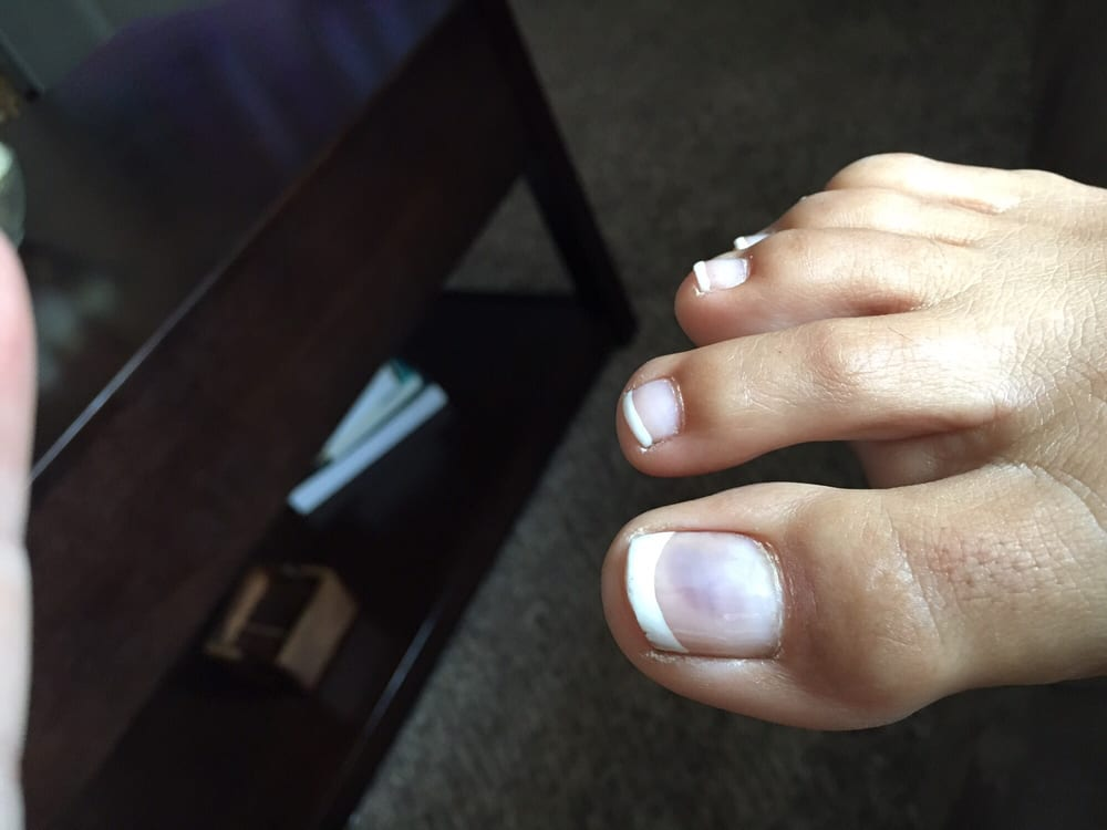 Nail fungus from pedicure... - Yelp