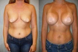 Pousti plastic breast
